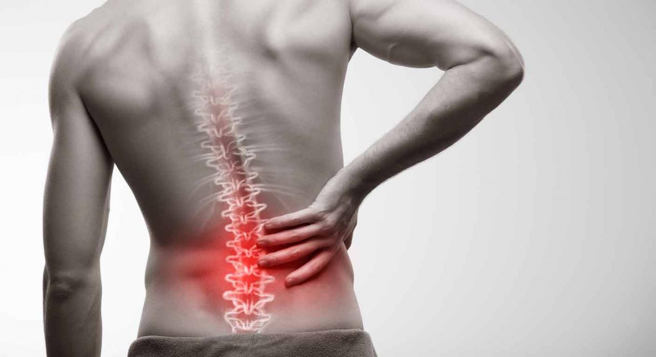 Hombre sufre recaída por dolor en la espalda
